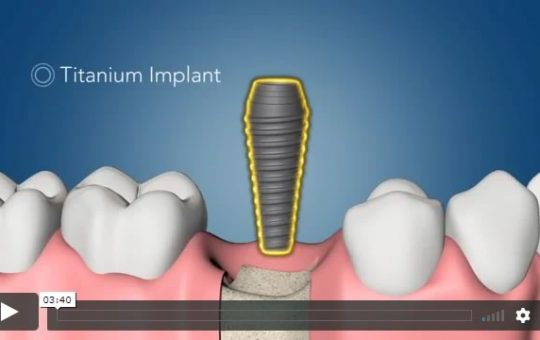 Video of Dental Implant Surgery with testimonial from a patient.