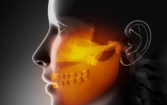Maxillofacial region concept x-ray jaws.