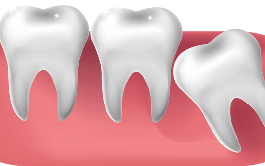 Illustration of impacted wisdom tooth.